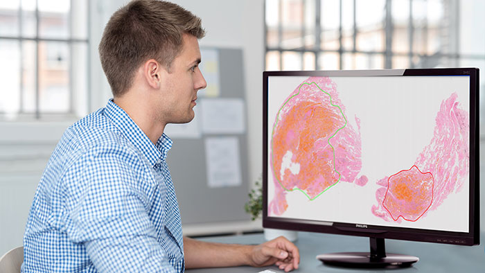 Philips receives MFDS approval to market Philips IntelliSite Pathology Solution for primary diagnostic use in South Korea